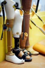Finansowanie protez - gdzie szukać środków?